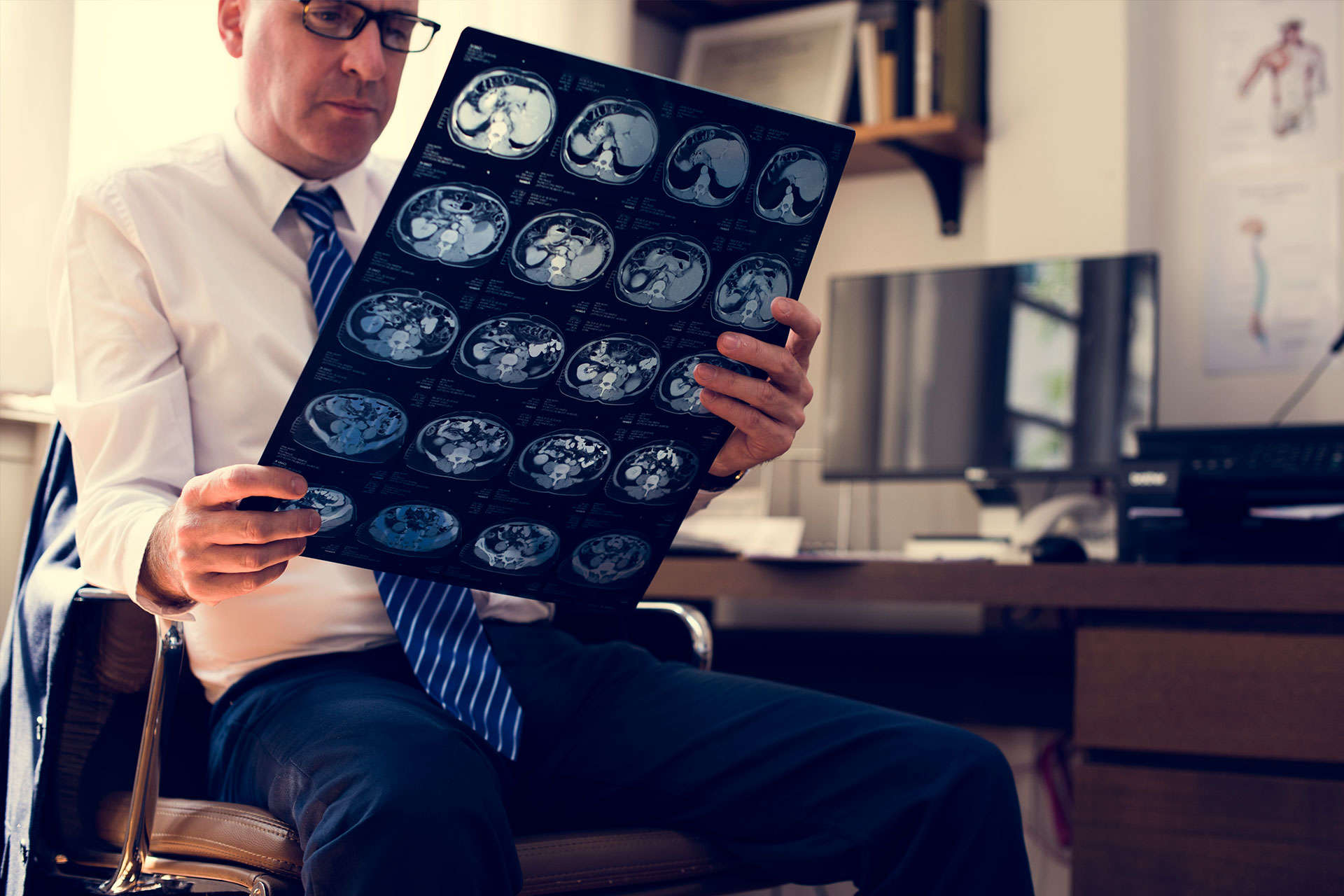 brain-head-injury-solicitors